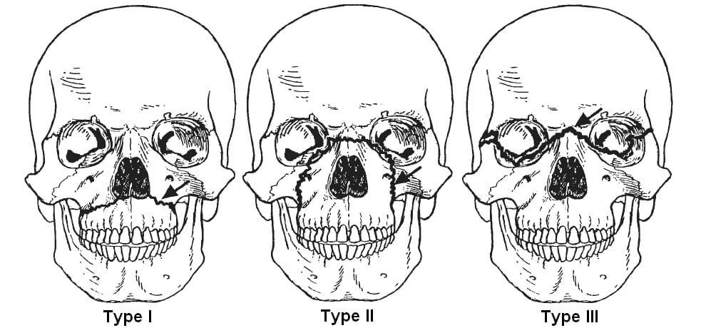 lefort-fracture Neurosurgery 1-